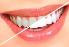 Smile photo teeth whitening